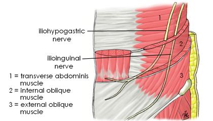 USRA - Ilioinguinal/Iliohyprogastric Nerve Block  USRA - Ilioingu...