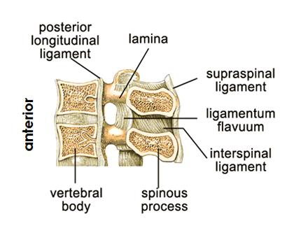 interlaminar epidural steroid injection lumbar